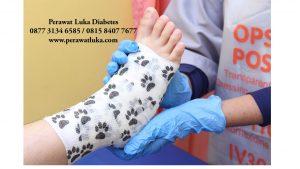 Foto Luka Diabetes Depok