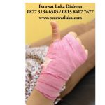Perawat Luka Home Care