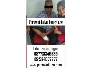 Perawat Luka Home Care Cibeureum Bogor