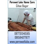 Perawat Luka Home Care Cihoe Bogor