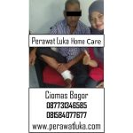 Perawat Luka Home Care Ciomas Bogor