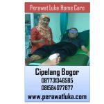 Perawat Luka Home Care Cipelang Bogor