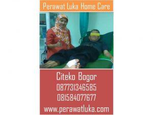 Perawat Luka Home Care Citeko Bogor