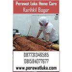 Perawat Luka Home Care Karihkil Bogor