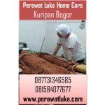 Perawat Luka Home Care Kuripan Bogor