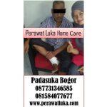 Perawat Luka Home Care Padasuka Bogor