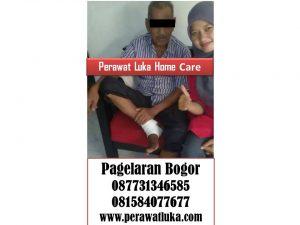 Perawat Luka Home Care Pagelaran Bogor