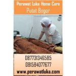 Perawat Luka Home Care Putat Bogor