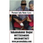 Perawat Luka Home Care Sukamakmur Bogor