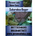 Perawat Luka Home Care Sukaraksa Bogor