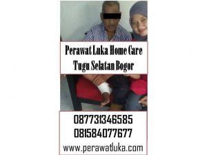 Perawat Luka Home Care Tugu Selatan Bogor