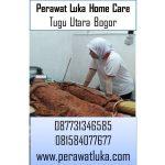 Perawat Luka Home Care Tugu Utara Bogor