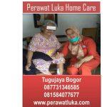 Perawat Luka Home Care Tugujaya Bogor