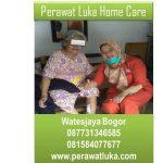 Perawat Luka Home Care Watesjaya Bogor