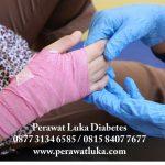 Perawatan Luka Home Care