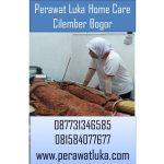 Perawat Luka Home Care Cilember Bogor