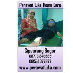 Perawat Luka Home Care Cipeucang Bogor