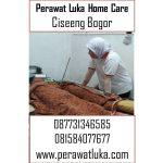 Perawat Luka Home Care Ciseeng Bogor