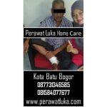Perawat Luka Home Care Kota Batu Bogor