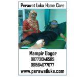 Perawat Luka Home Care Mampir Bogor
