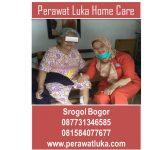Perawat Luka Home Care Srogol Bogor