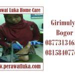 Perawat Luka Home Care Grimulya Bogor